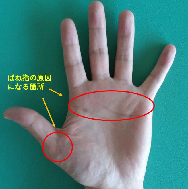 方 治し ばね の 指