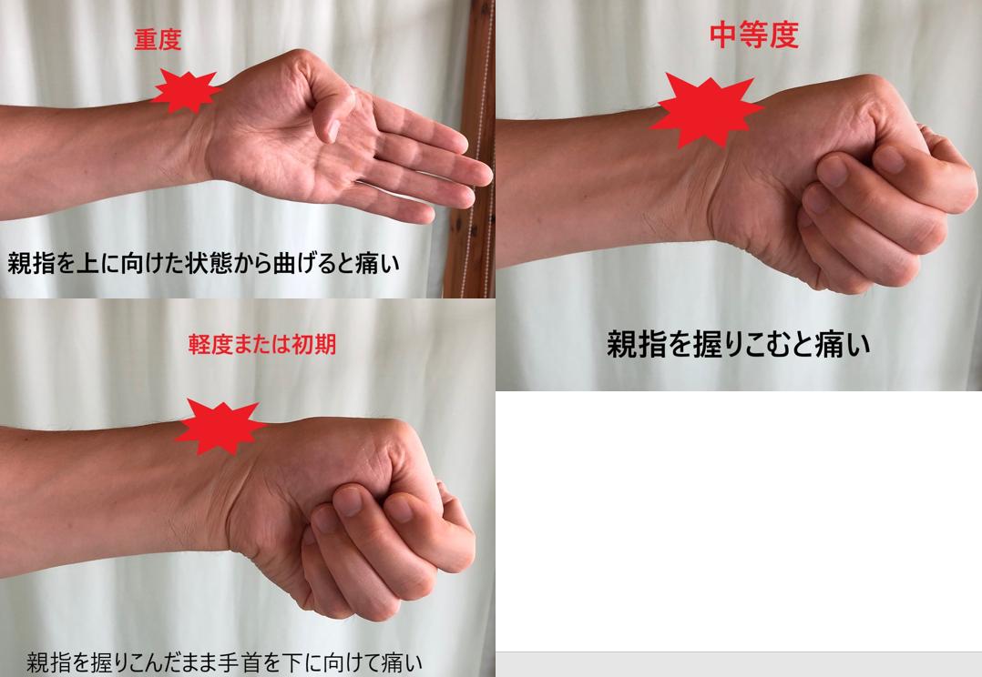 手首 が 痛い 【手首が痛い】小指側が痛い時は要注意!!原因と治し方も解説します...