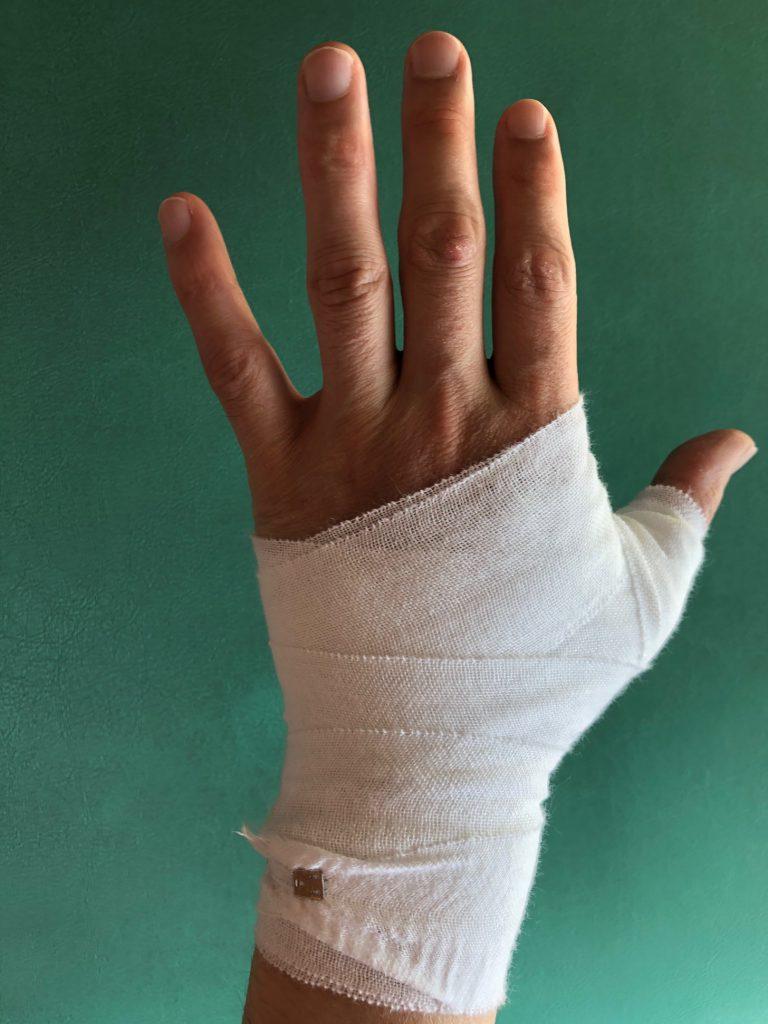 付け根 手 痛い の 指 の が