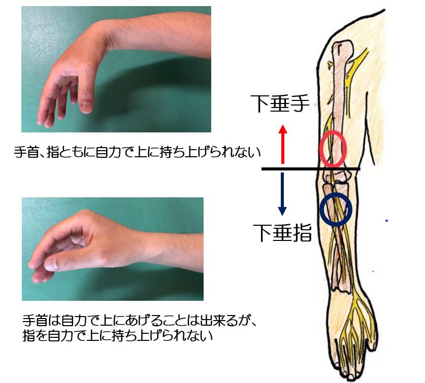 とう こつ 神経 麻痺 「橈骨神経麻痺」|日本整形外科学会 症状・病気をしらべる
