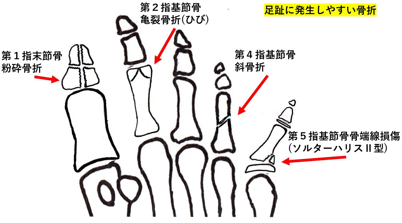 小指 ぶつけ 内出血 足 の た 足の小指が骨折しているかもしれない時の6つの症状